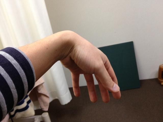 とう こつ 神経 麻痺 腕の神経麻痺について【よくある症状】 ...